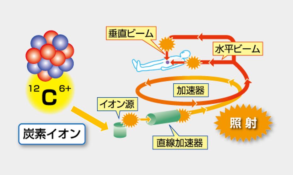 炭素イオンを照射する仕組み
